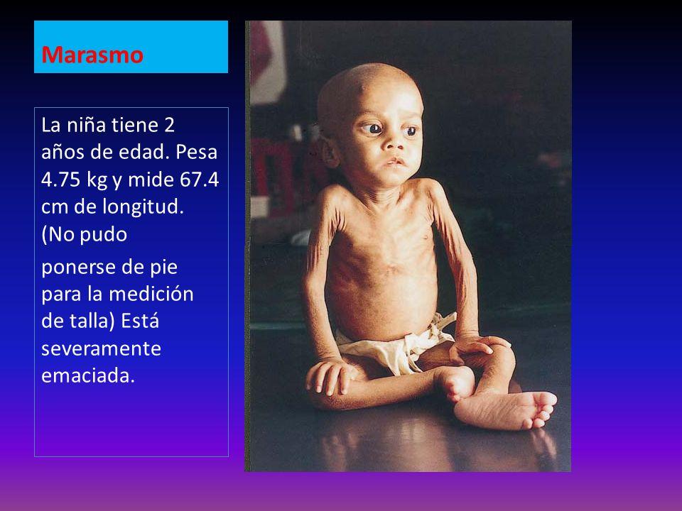 Marasmo Marasmo. La niña tiene 2 años de edad. Pesa 4.75 kg y mide 67.4 cm de longitud. (No pudo.
