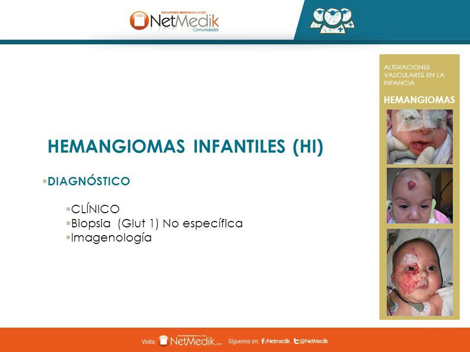 HEMANGIOMAS INFANTILES (HI)