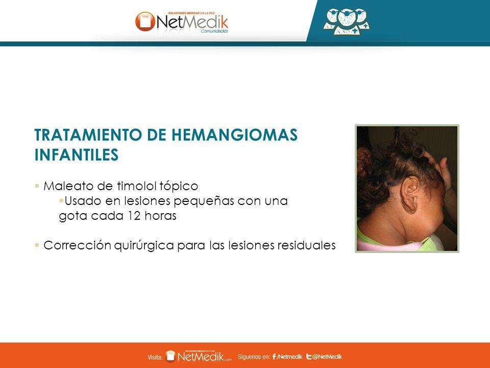TRATAMIENTO DE HEMANGIOMAS INFANTILES