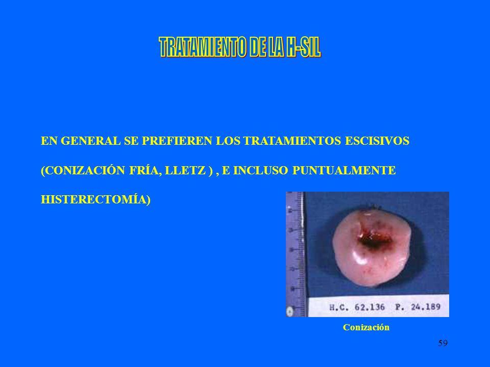 TRATAMIENTO DE LA H-SIL