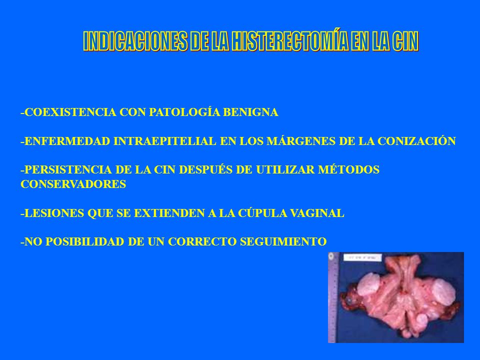 INDICACIONES DE LA HISTERECTOMÍA EN LA CIN