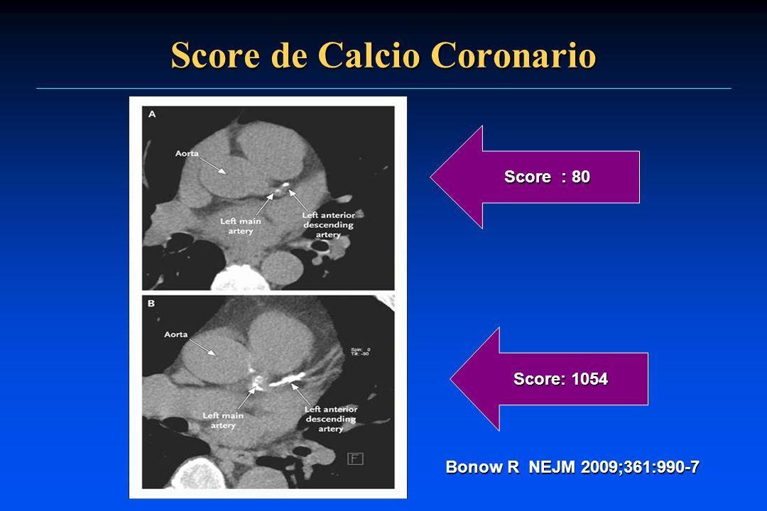 Score de Calcio Coronario