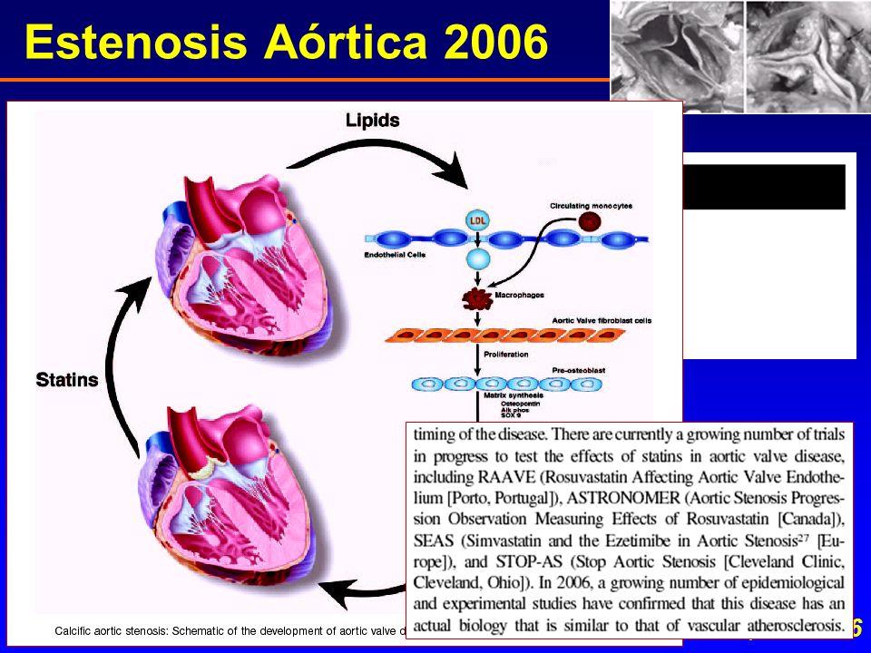Estenosis Aórtica 2006 Rajamannan N, Circulation 2006; 113:2116