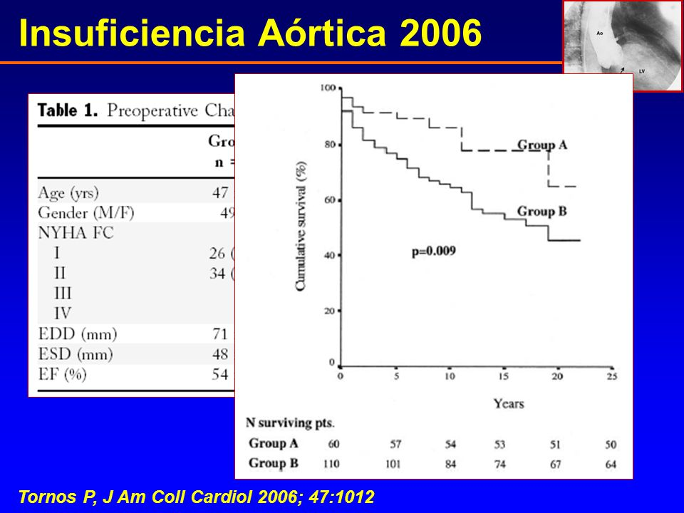 Insuficiencia Aórtica 2006