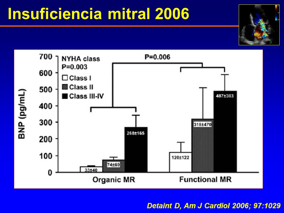 Insuficiencia mitral 2006 Detaint D, Am J Cardiol 2006; 97:1029