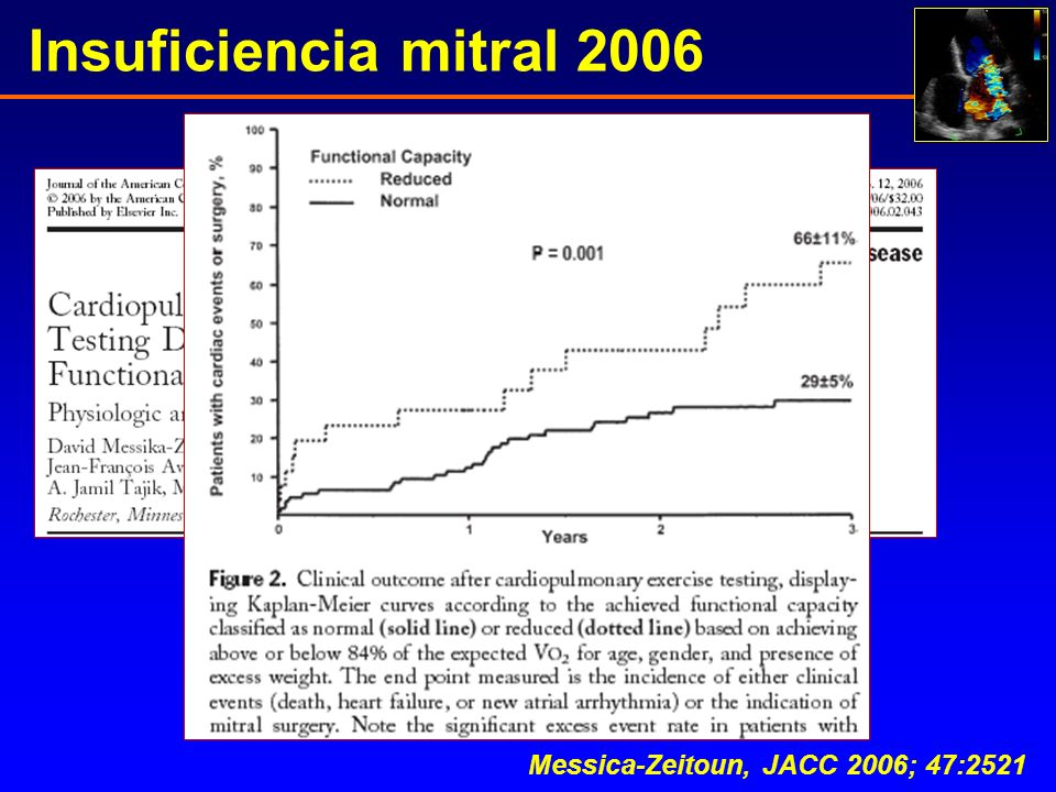 Insuficiencia mitral 2006 Messica-Zeitoun, JACC 2006; 47:2521