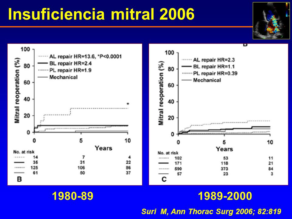 Insuficiencia mitral 2006 1980-89 1989-2000