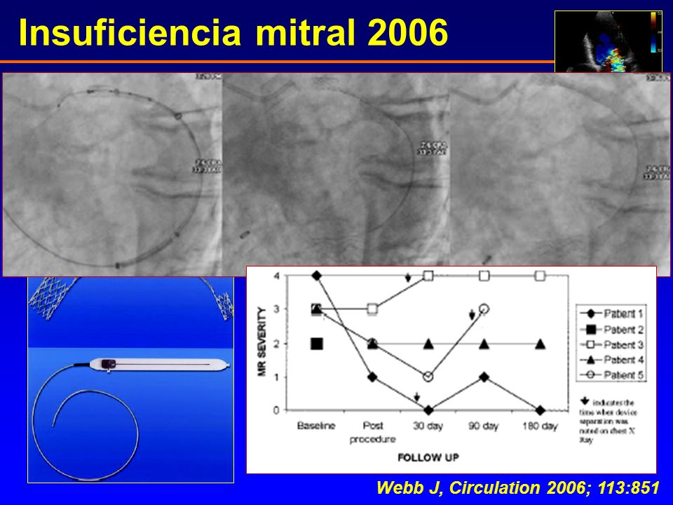 Insuficiencia mitral 2006 Webb J, Circulation 2006; 113:851