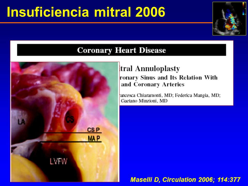 Insuficiencia mitral 2006 Maselli D, Circulation 2006; 114:377