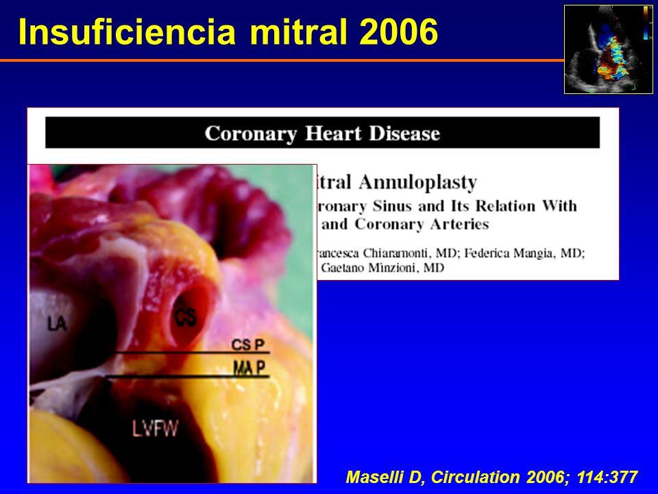 Insuficiencia mitral 2006 Maselli D, Circulation 2006; 114:377