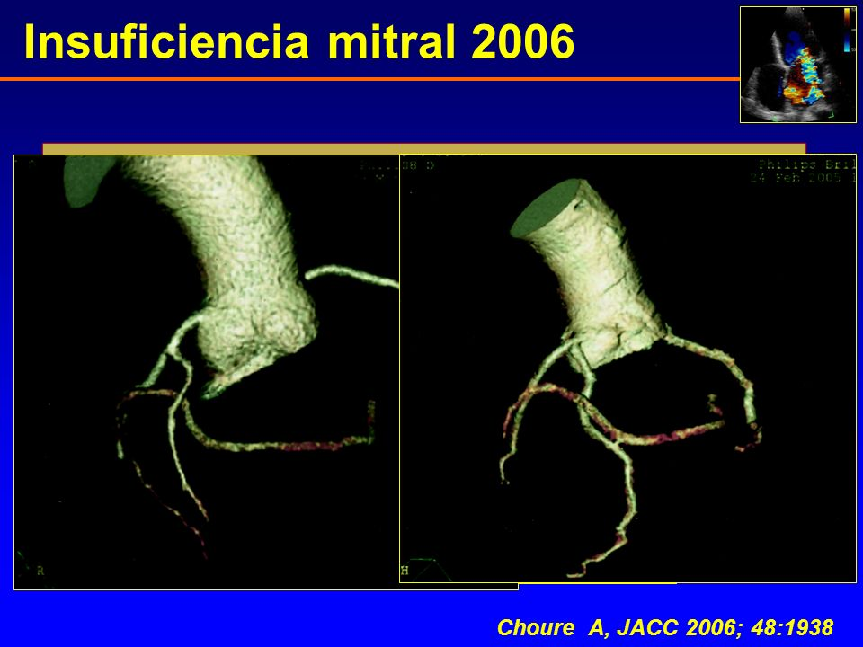 Insuficiencia mitral 2006 Choure A, JACC 2006; 48:1938