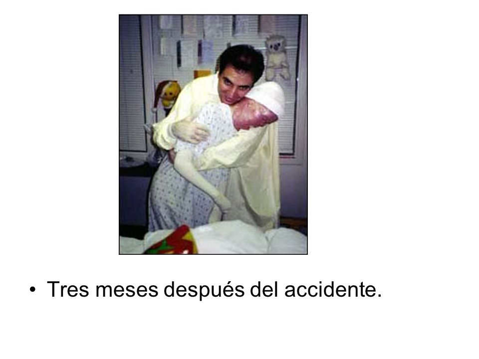 Tres meses después del accidente.