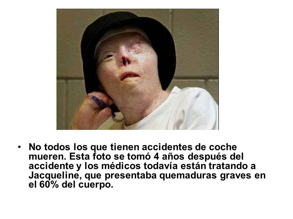 No todos los que tienen accidentes de coche mueren