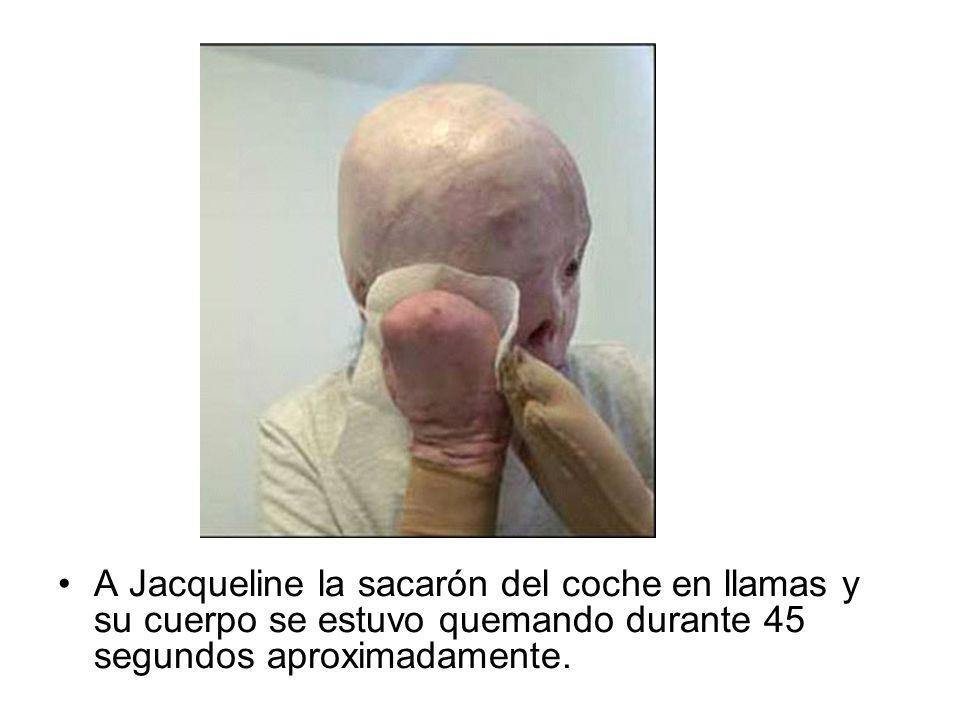 A Jacqueline la sacarón del coche en llamas y su cuerpo se estuvo quemando durante 45 segundos aproximadamente.