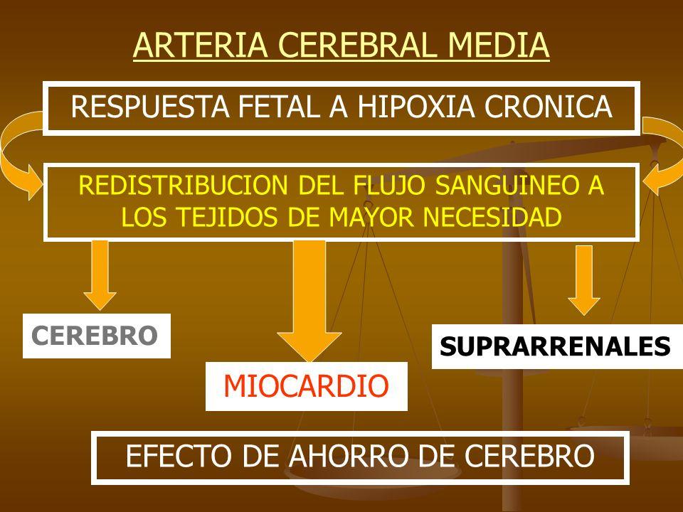 ARTERIA CEREBRAL MEDIA