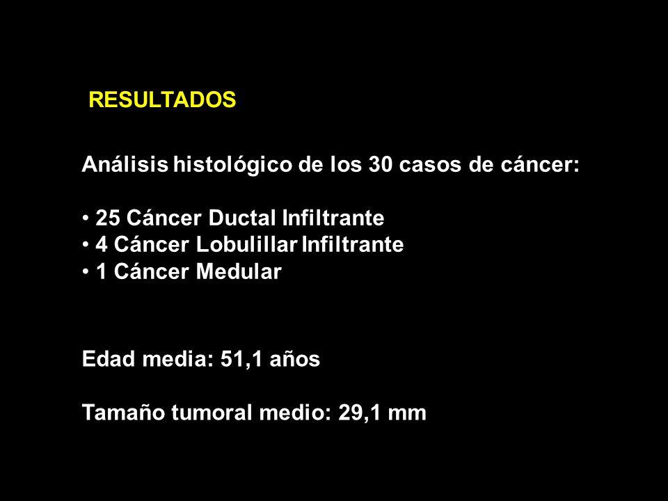 RESULTADOS Análisis histológico de los 30 casos de cáncer: 25 Cáncer Ductal Infiltrante. 4 Cáncer Lobulillar Infiltrante.