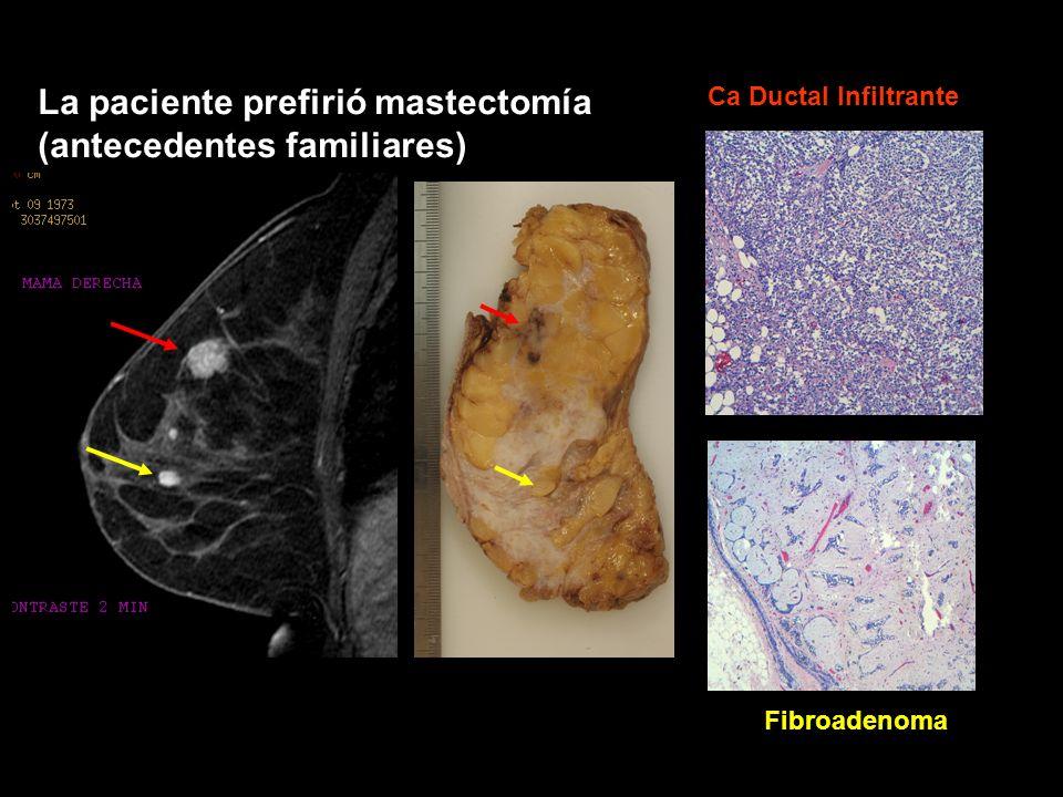 La paciente prefirió mastectomía (antecedentes familiares)