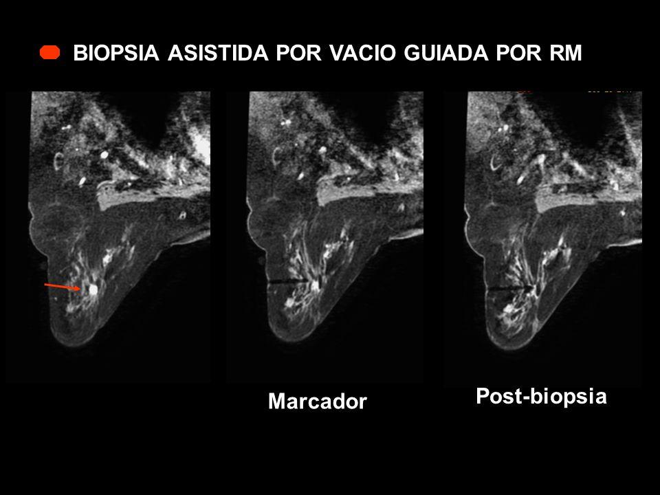 BIOPSIA ASISTIDA POR VACIO GUIADA POR RM