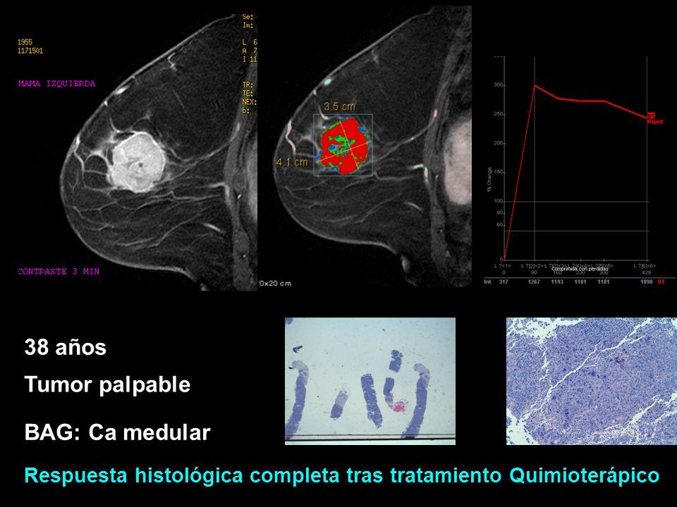 38 años Tumor palpable BAG: Ca medular