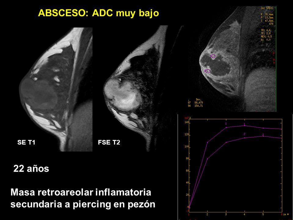 Masa retroareolar inflamatoria secundaria a piercing en pezón