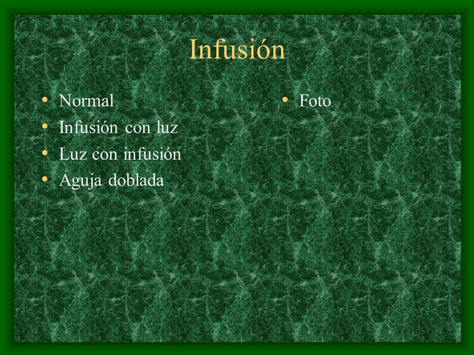 Infusión Normal Infusión con luz Luz con infusión Aguja doblada Foto