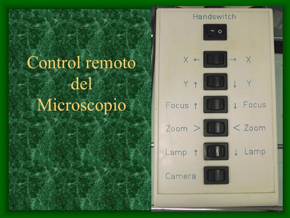 Control remoto del Microscopio