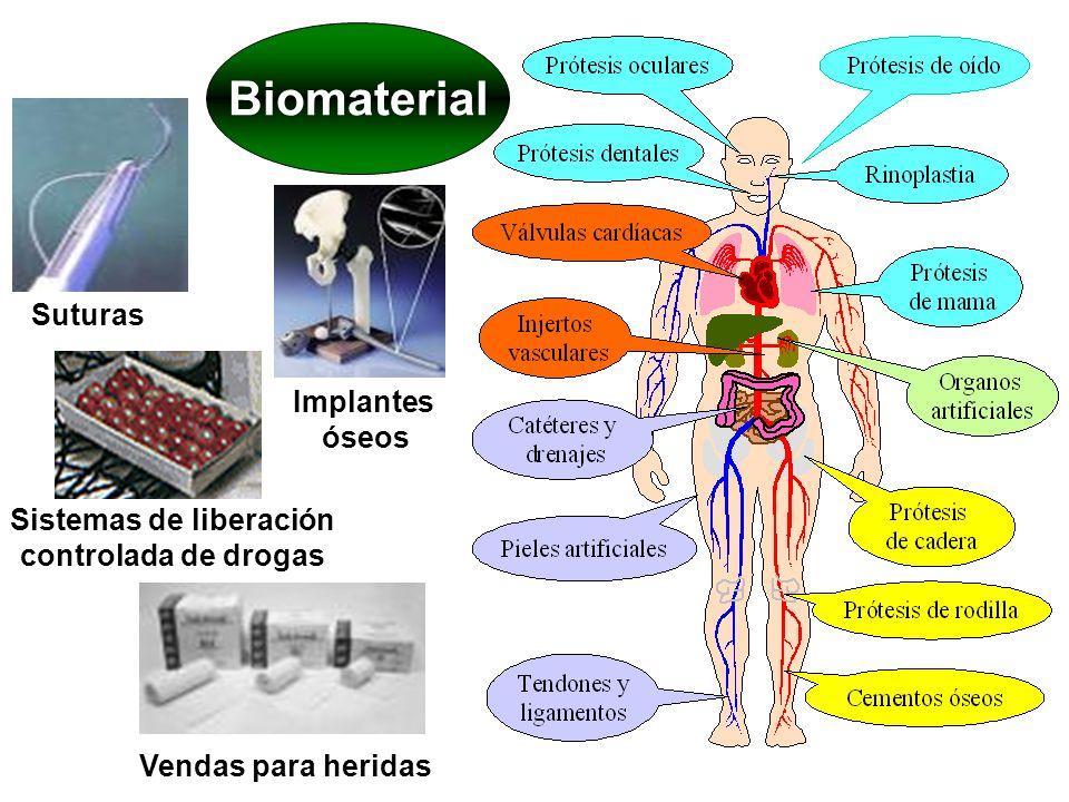 Sistemas de liberación controlada de drogas
