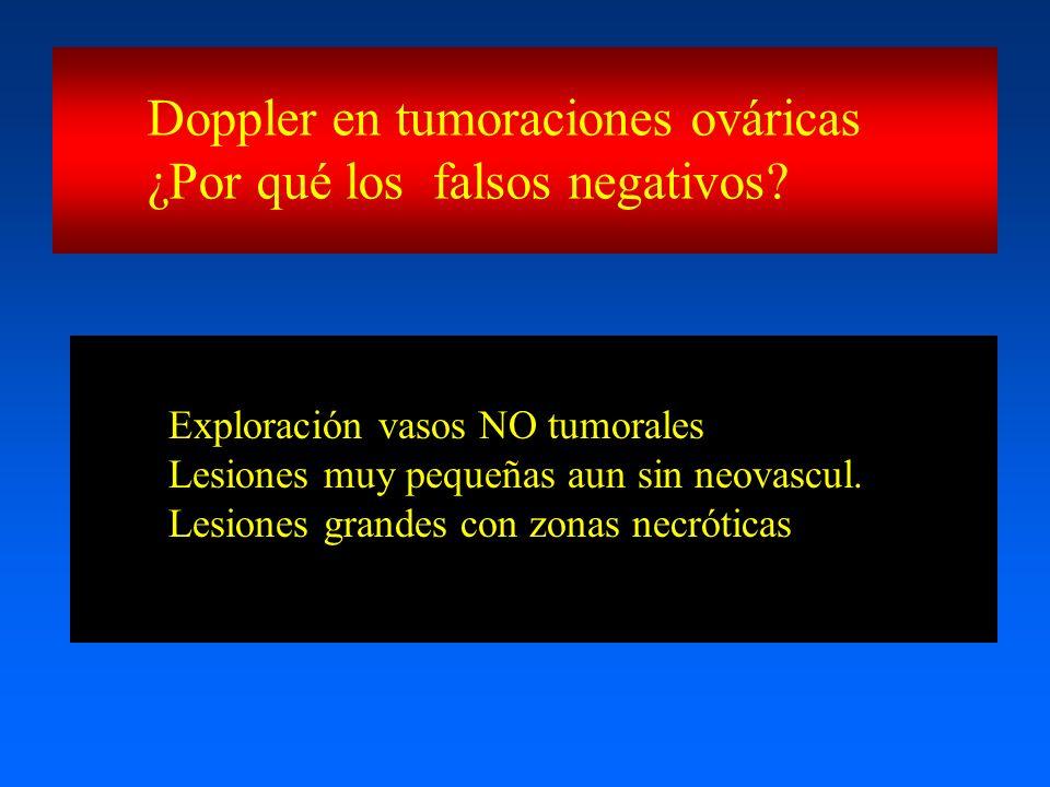 Doppler en tumoraciones ováricas ¿Por qué los falsos negativos