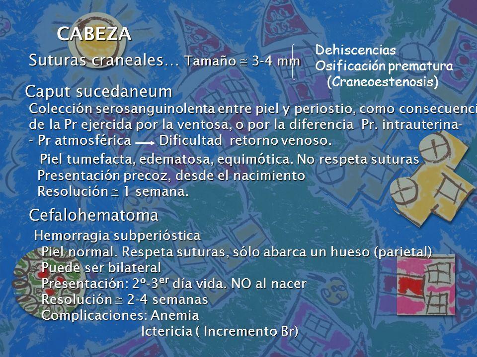 CABEZA Suturas craneales… Tamaño  3-4 mm Caput sucedaneum