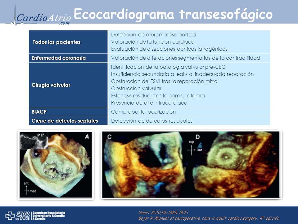 Ecocardiograma transesofágico