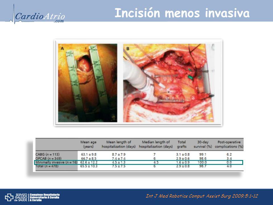 Incisión menos invasiva