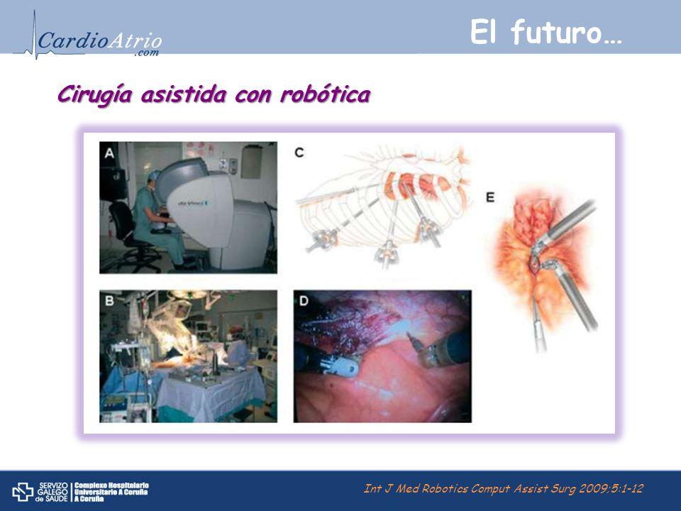 El futuro… Cirugía asistida con robótica