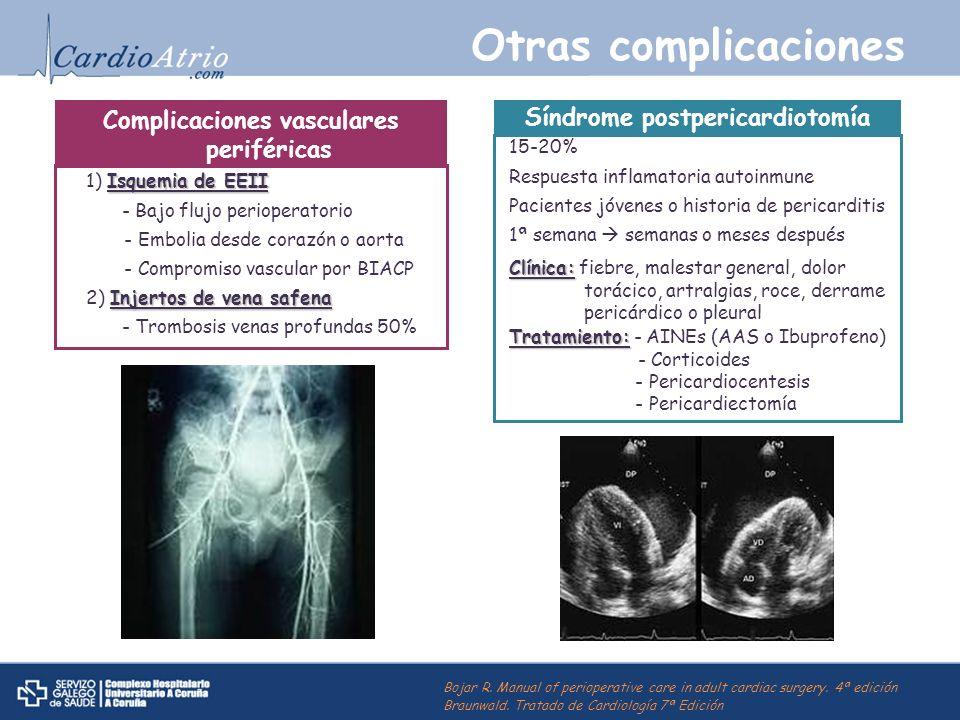 Complicaciones vasculares periféricas Síndrome postpericardiotomía
