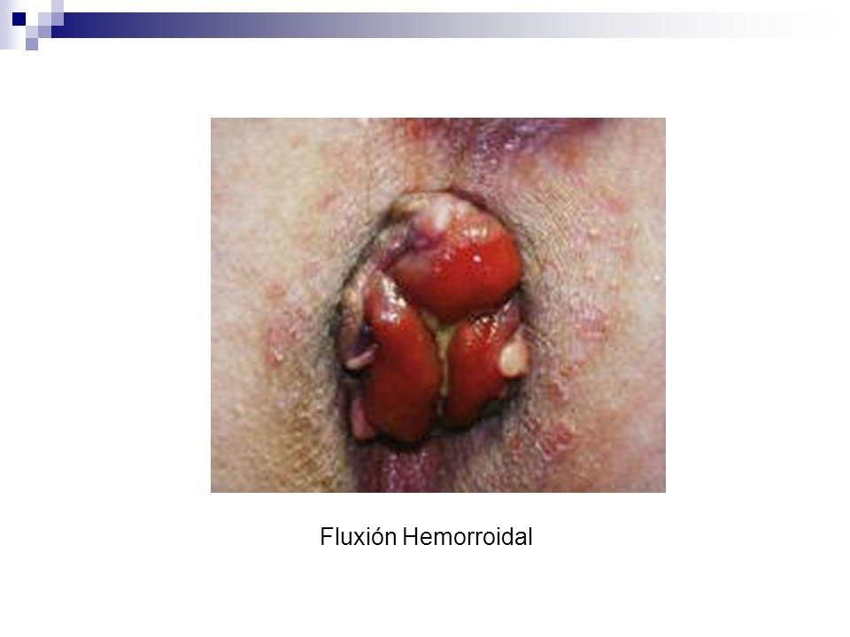 Fluxión Hemorroidal