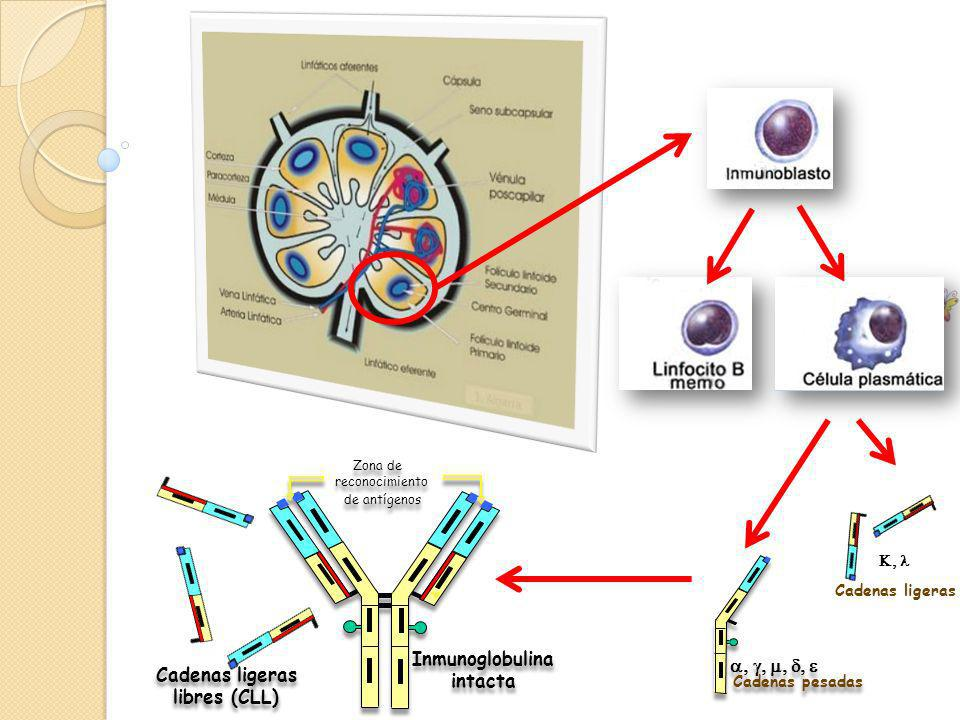 Inmunoglobulina intacta Cadenas ligeras libres (CLL)