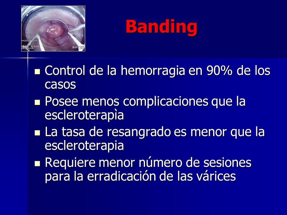 Banding Control de la hemorragia en 90% de los casos