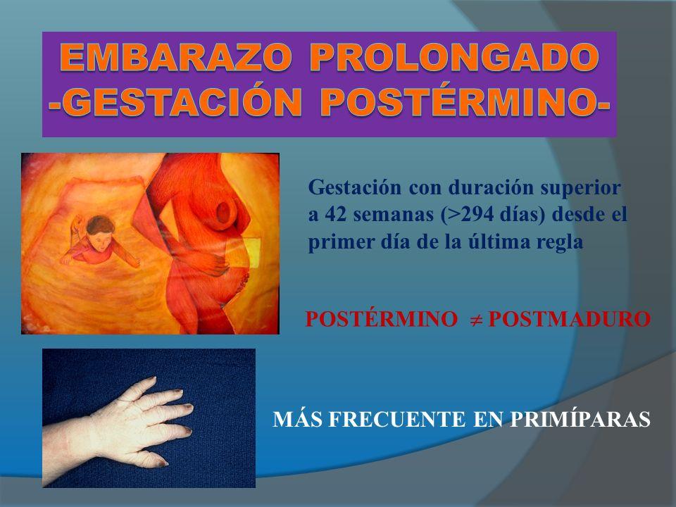 Embarazo prolongado -Gestación postérmino-