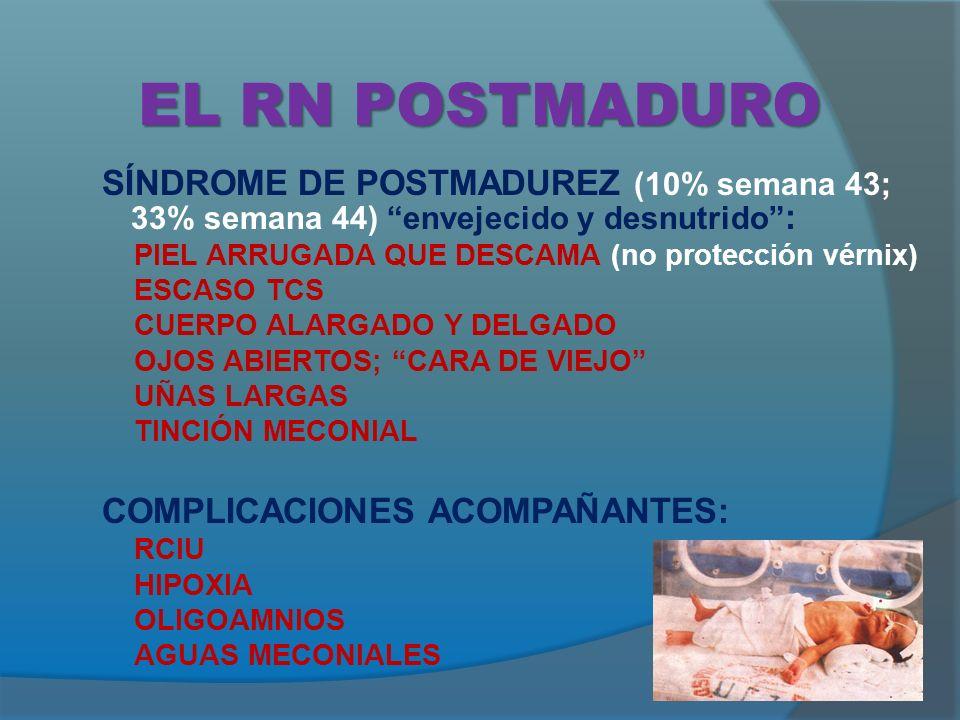 EL RN POSTMADURO SÍNDROME DE POSTMADUREZ (10% semana 43; 33% semana 44) envejecido y desnutrido : PIEL ARRUGADA QUE DESCAMA (no protección vérnix)
