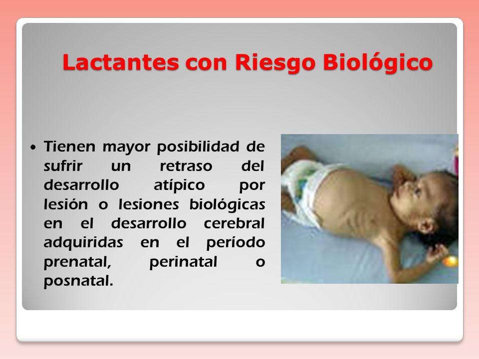 Lactantes con Riesgo Biológico