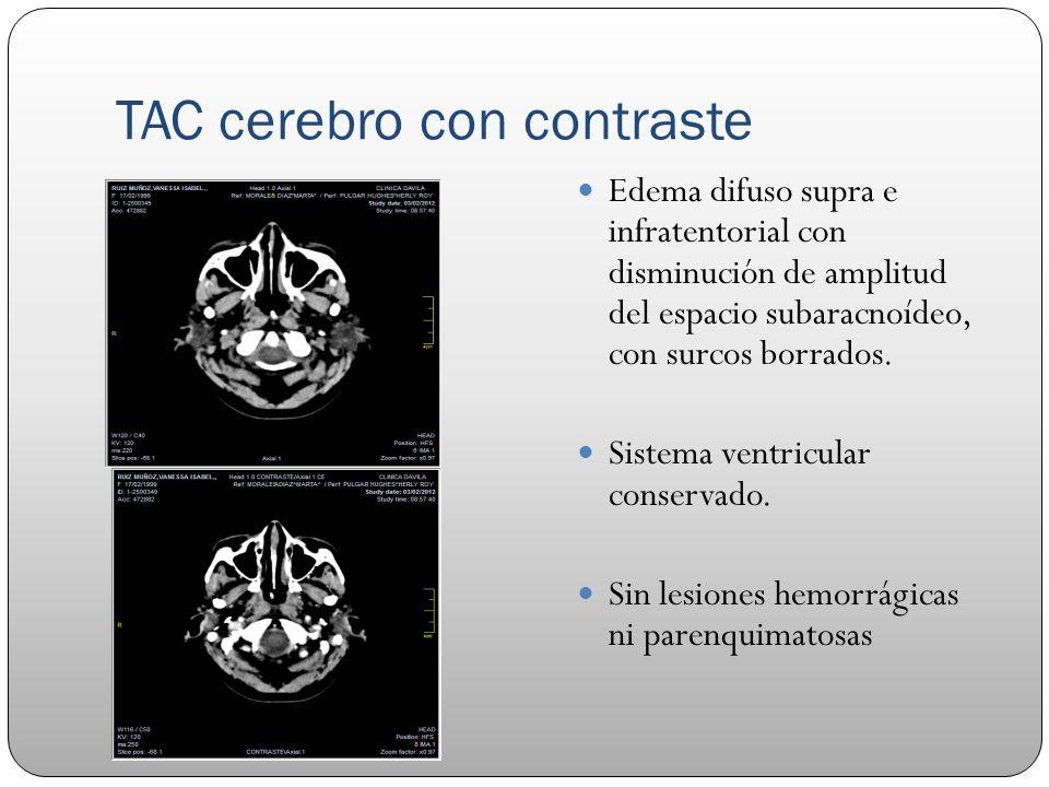 TAC cerebro con contraste