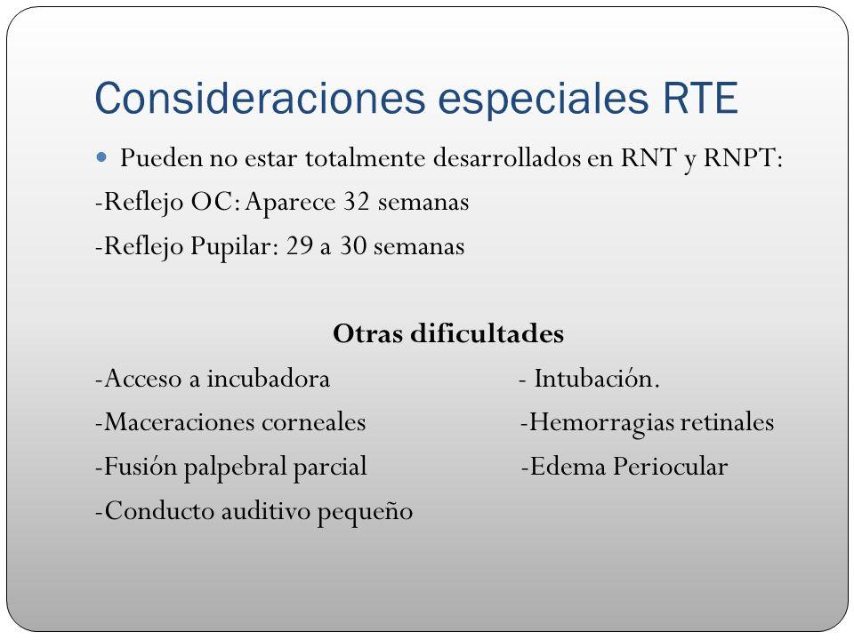 Consideraciones especiales RTE