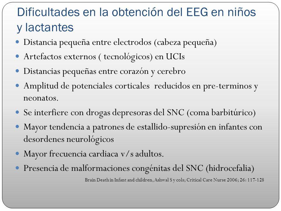 Dificultades en la obtención del EEG en niños y lactantes