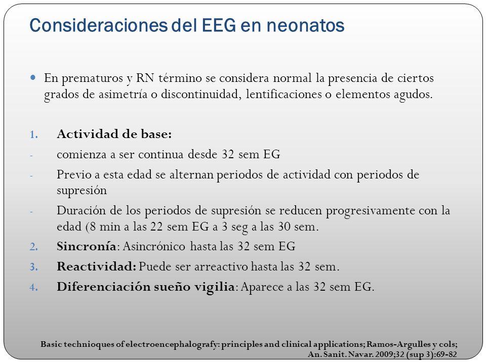 Consideraciones del EEG en neonatos