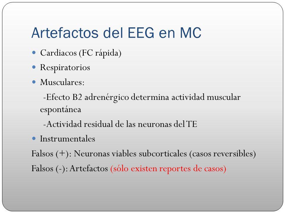 Artefactos del EEG en MC