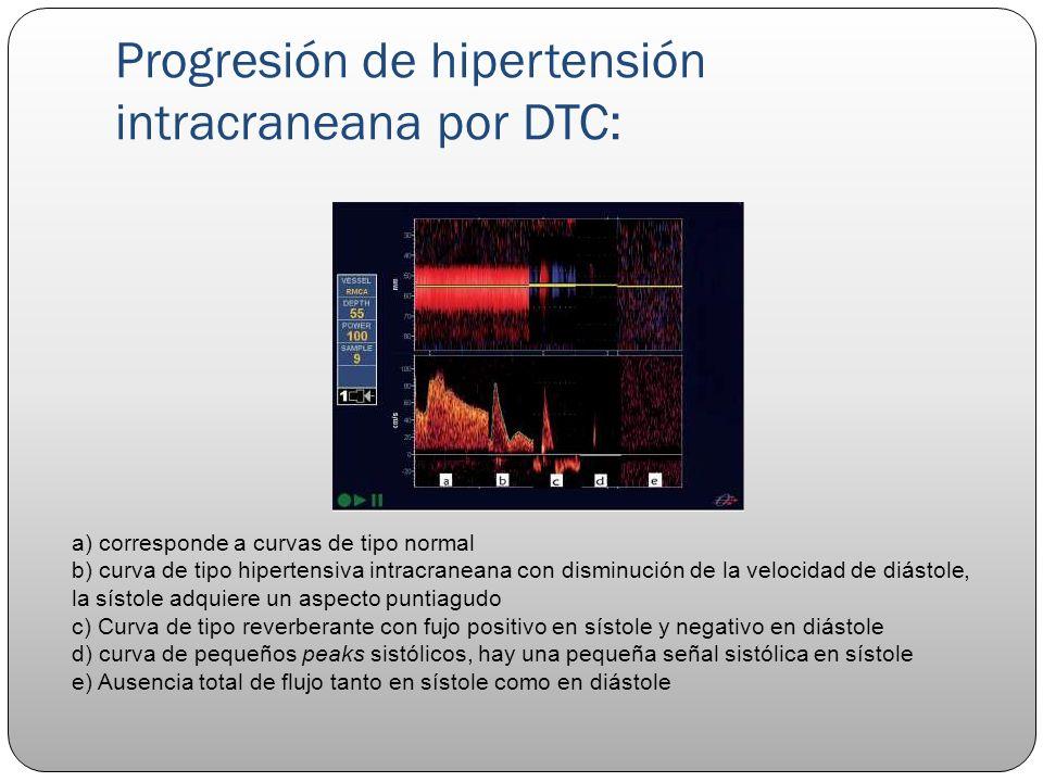 Progresión de hipertensión intracraneana por DTC: