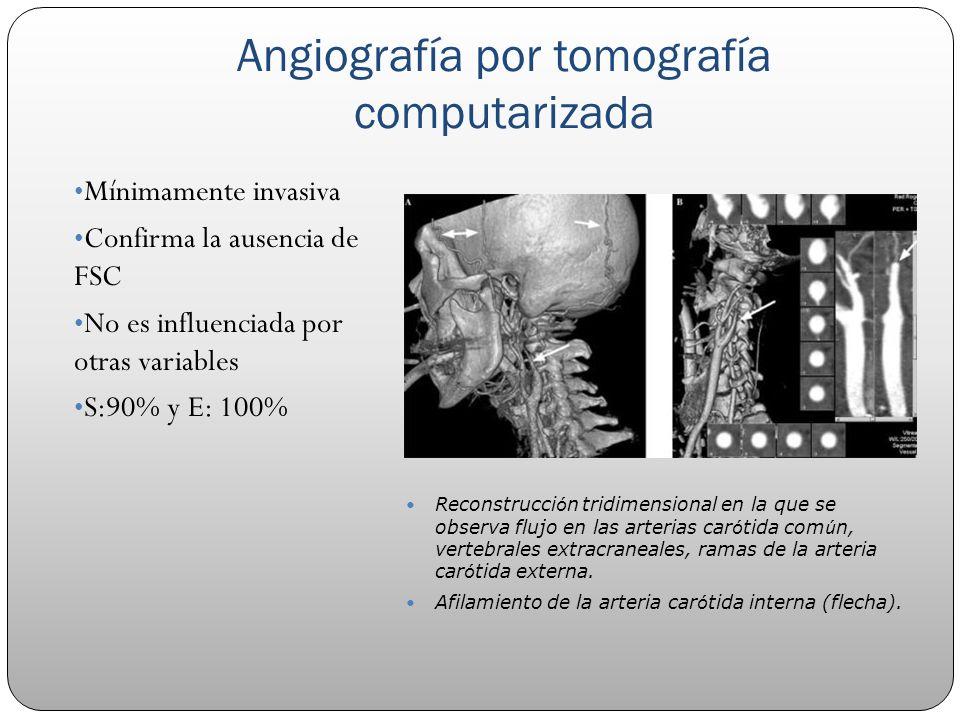 Angiografía por tomografía computarizada