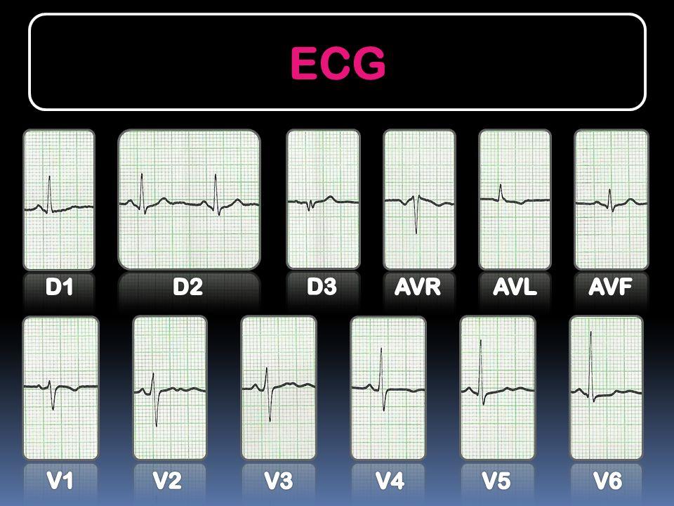 ECG D1 D2 D3 AVR AVL AVF V1 V2 V3 V4 V5 V6