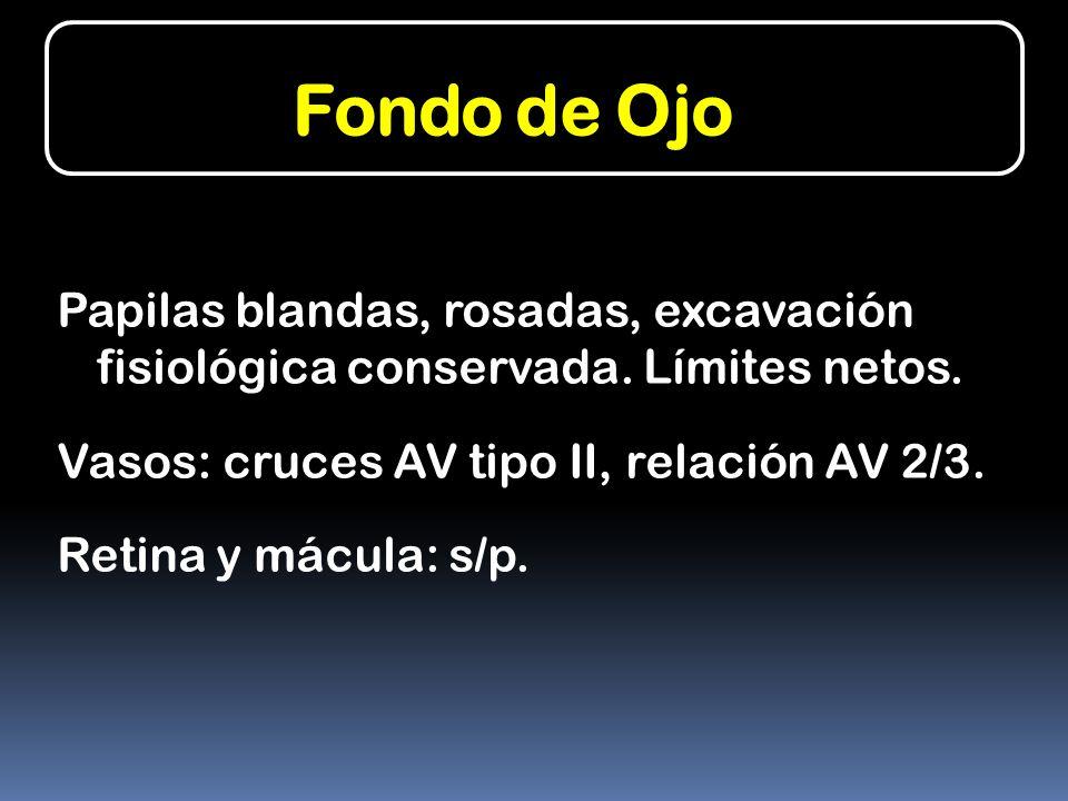Fondo de Ojo Papilas blandas, rosadas, excavación fisiológica conservada. Límites netos. Vasos: cruces AV tipo II, relación AV 2/3.