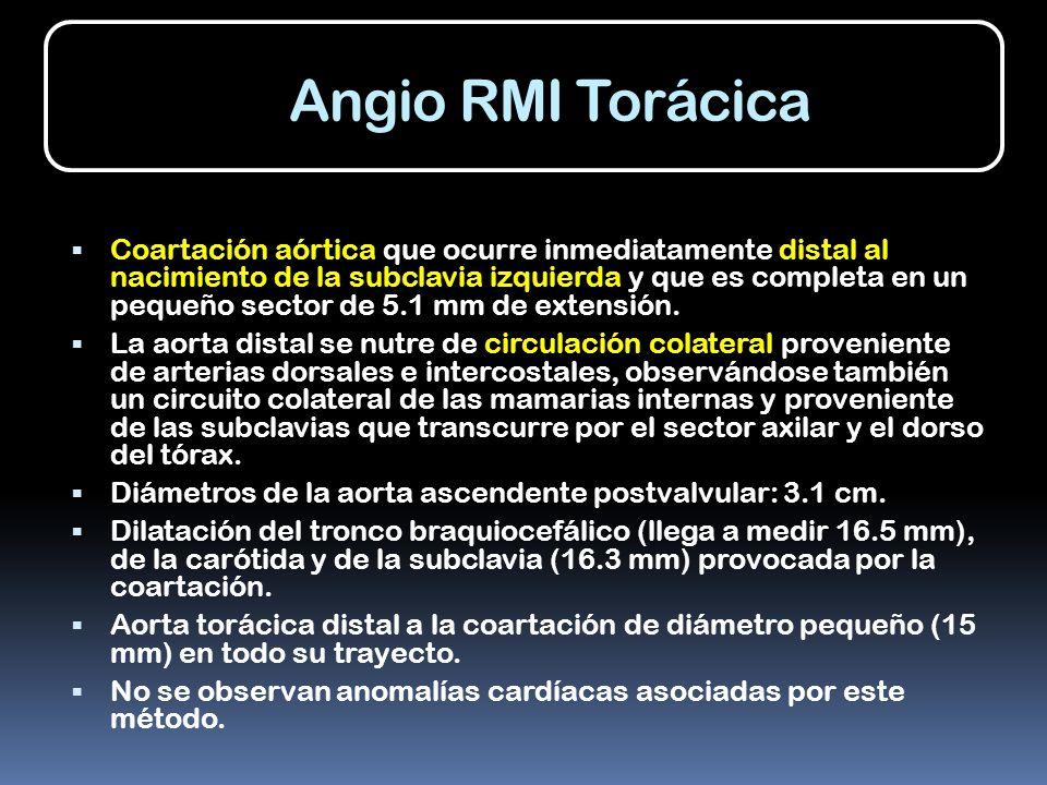Angio RMI Torácica