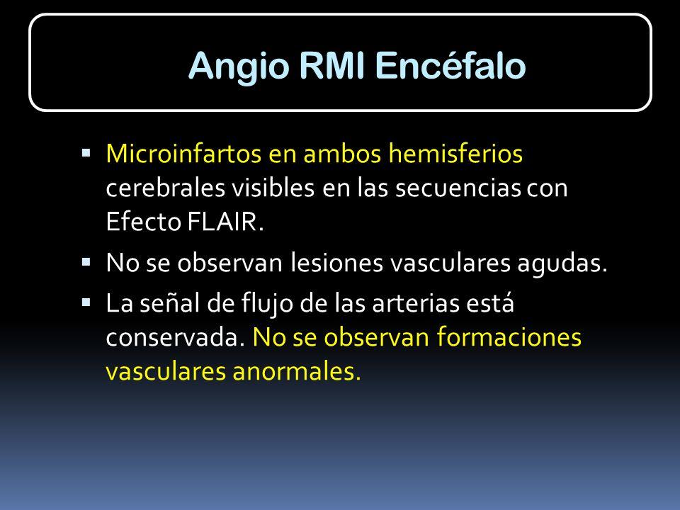 Angio RMI Encéfalo Microinfartos en ambos hemisferios cerebrales visibles en las secuencias con Efecto FLAIR.